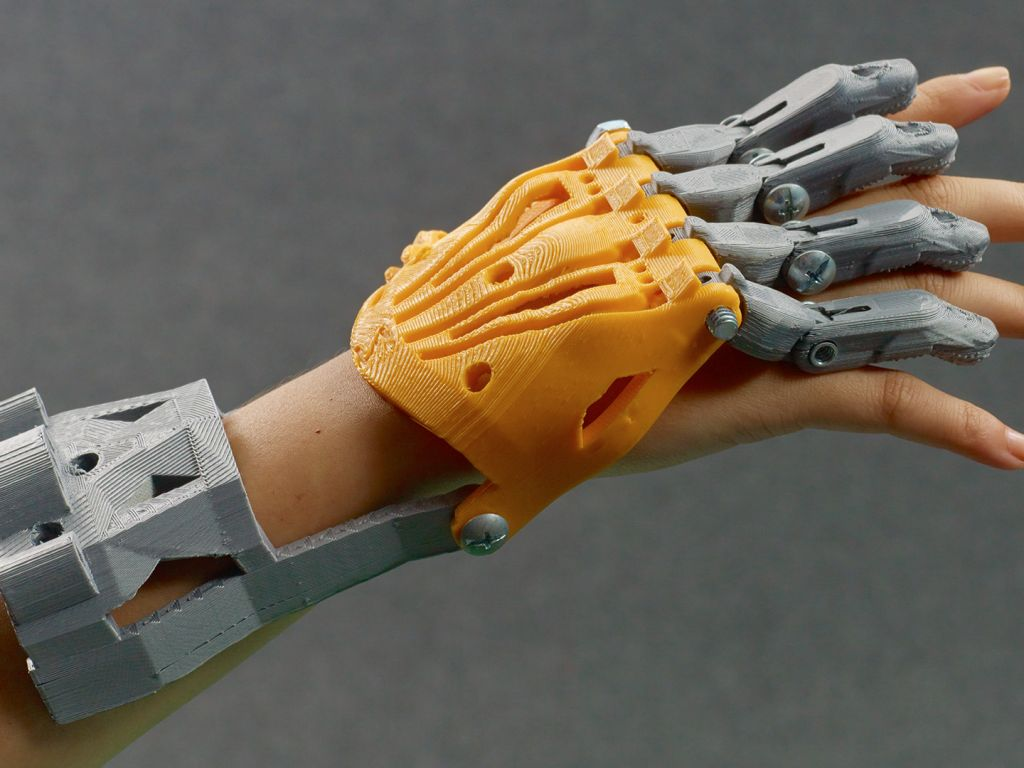 Personalization-Hand-Prosthetic